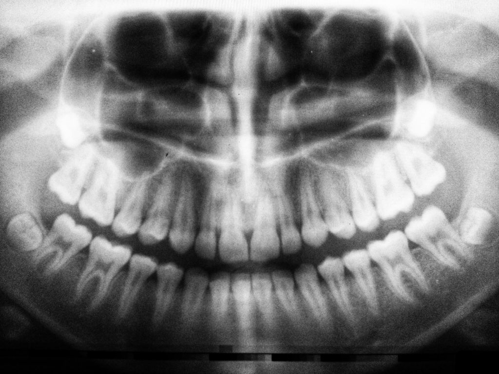 tony weir orthodontist brisbane xray
