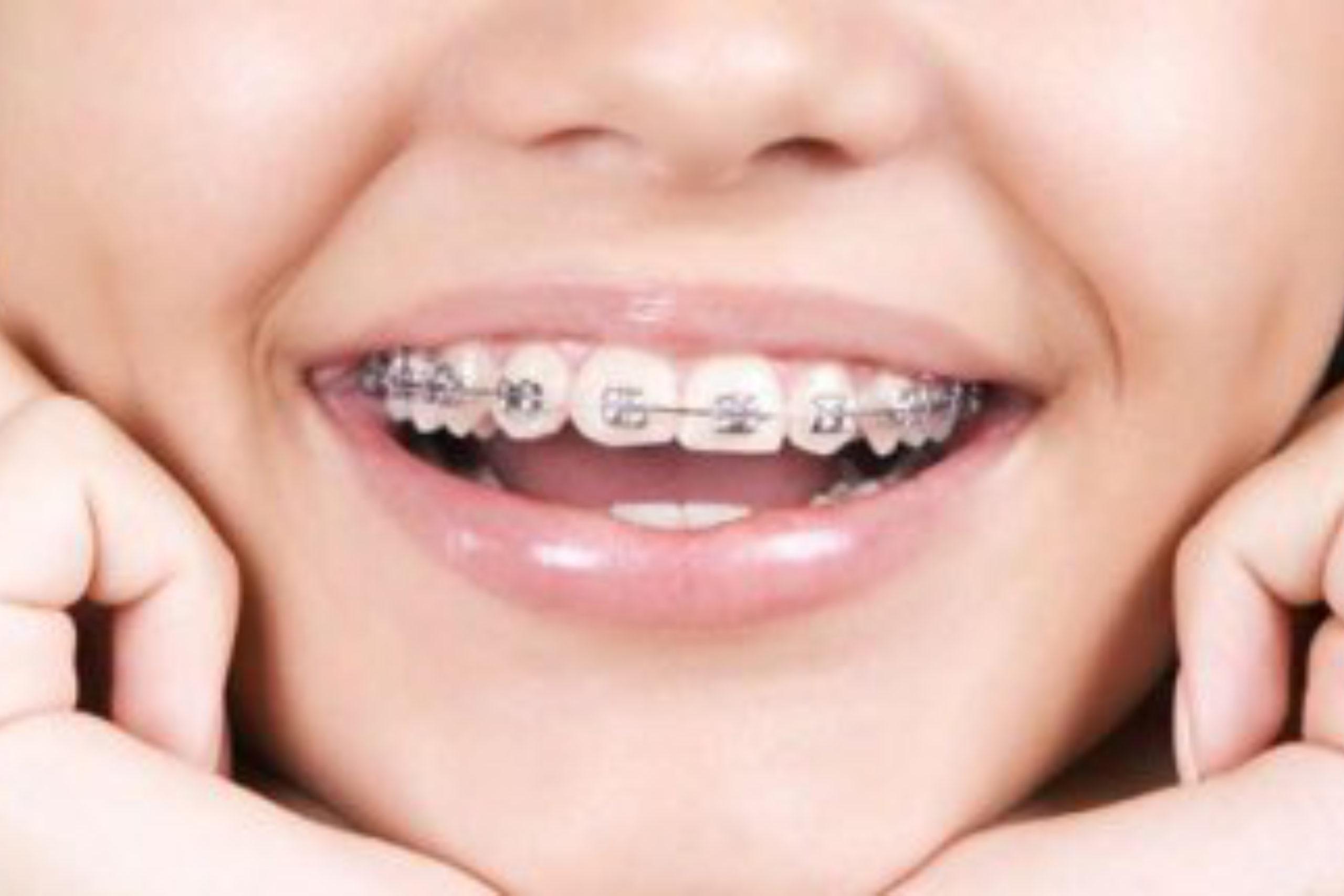 tony weir orthodontist brisbane braces