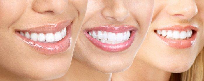 tony weir orthodontist brisbane invisalign