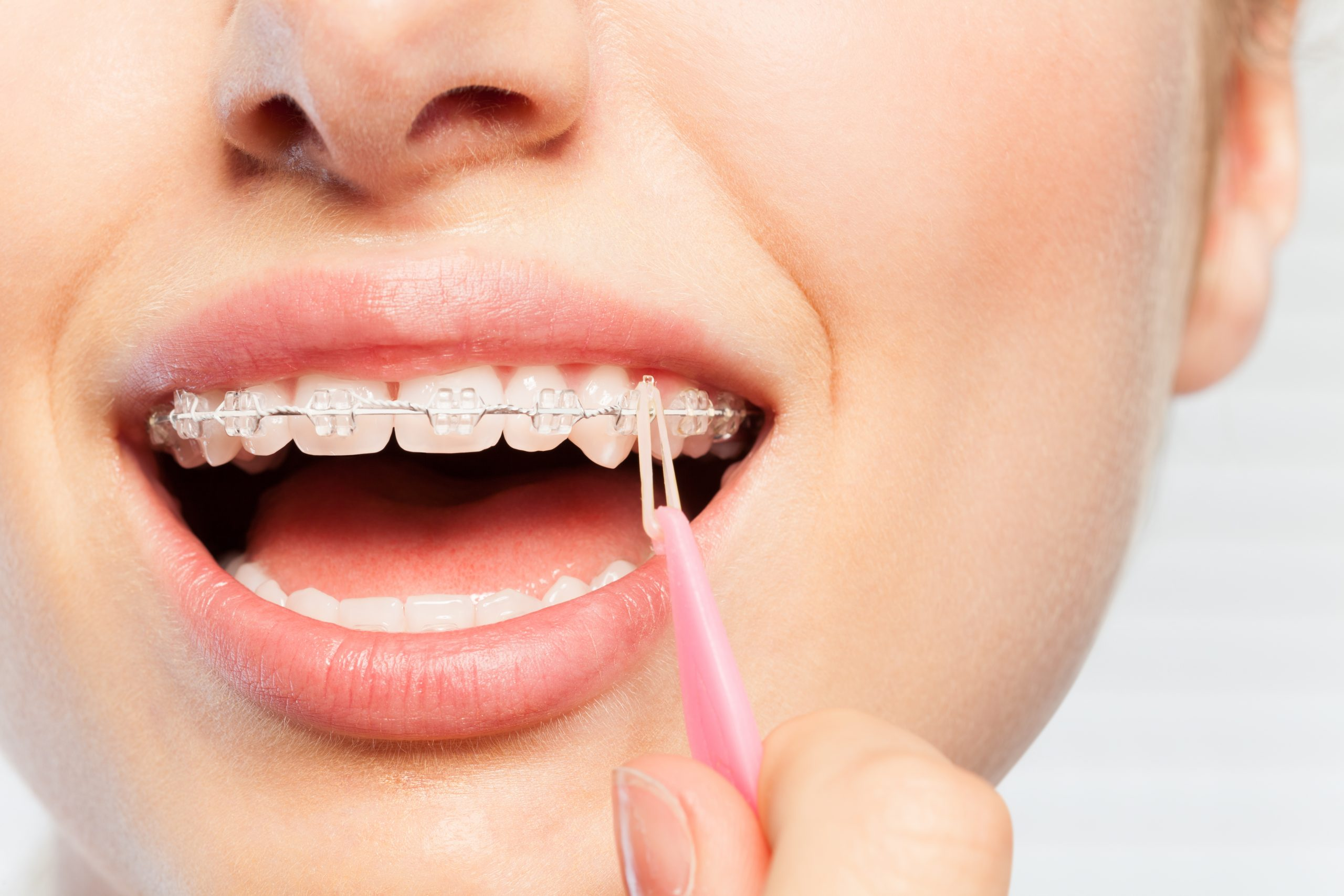 tony weir orthodontist braces elastics