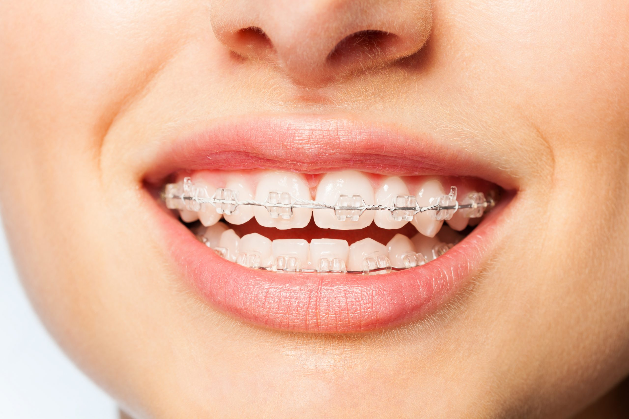 tony weir orthodontist brisbane braces