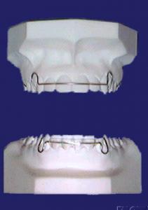 tony weir orthodontist brisbane retainer
