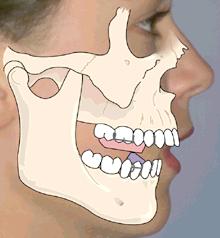 tony weir orthodontist brisbane